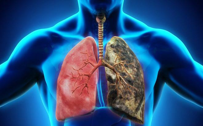 Ung thư phổi sống được bao nhiêu năm?