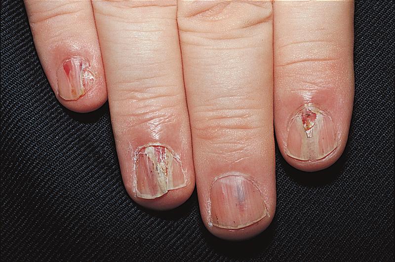 Mắc bệnh nấm móng tay