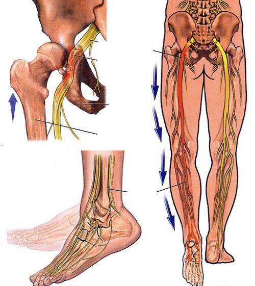 Đau là biểu hiện đặc trưng nhất của viêm dây thần kinh tọa và các tổn thương khác
